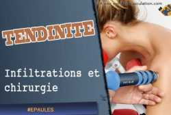 Infiltrations et chirurgie