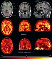 compare and contrast drinkers vs The long-term effects of alcohol consumption range from cardioprotective health  benefits for  according to another study, drinkers with heavy drinking occasions  (six or  in contrast to the beneficial effect of alcohol on ischemic stroke,  consumption of more than 2 drinks per day increases the risk of hemorrhagic  stroke.